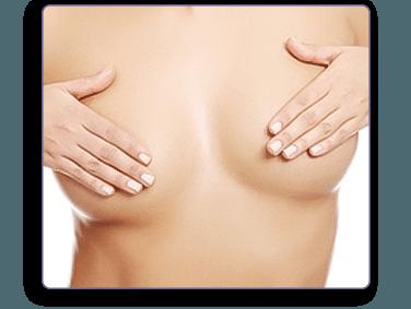 Circumaleolar breast lift